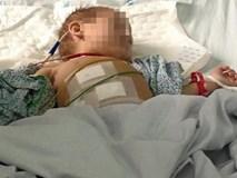 Đi chữa đau mắt, cháu bé 2 tuổi phải mổ cấp cứu vì giun đục thủng ruột thừa