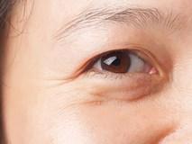 5 thói quen khiến gương mặt bạn chi chít nếp nhăn