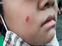 Vụ đánh cô giáo vì làm xước má con: Phụ huynh cũng là giáo viên