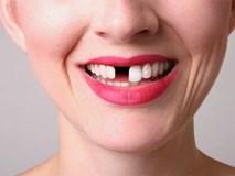 Mơ thấy rụng răng – đừng coi thường vì nó nghiêm trọng hơn bạn tưởng