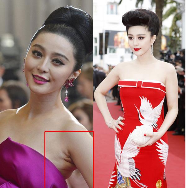 Vùng nách nhiều mỡ thừa của Phạm Băng Băng khi chưa chỉnh sửa photoshop (trái) và hình ảnh nuột nà của cô khi đã được tút tát (phải)