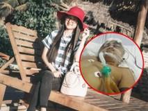 Cô gái 19 tuổi kêu gọi giúp đỡ nam sinh bị chấn thương sọ não sau tai nạn giao thông