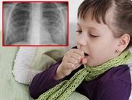 Trẻ vào viện vì viêm hô hấp, vài giờ sau phổi đã trắng xóa vì kháng sinh 'bó tay'