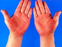 Biết chính xác 99% vận mệnh tương lai qua màu sắc lòng bàn tay