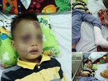 Dân mạng kêu gọi giúp đỡ cậu bé nghèo bị ngã từ sân thượng