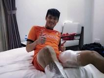 """Hậu chiến thắng Malaysia, Công Vinh """"khoe"""" hai đùi... chườm đá"""
