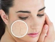 Những cách chữa da mặt khô nẻ mùa đông hiệu quả ai cũng cần biết