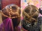 Các mẹ hãy cẩn thận: Cột tóc cho con không an toàn như bạn nghĩ