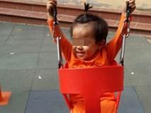 Hội đồng chuyên khoa đã có kết luận vụ bé gái 2 tuổi chữa viêm phổi bị liệt 1 chân
