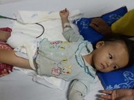 Xót lòng bé gái 3 tuổi suy dinh dưỡng có thể bị cắt cụt chân