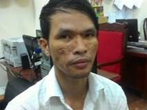 Nỗi đau của cha mẹ bé trai Campuchia bị hành hạ