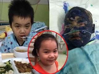 Xót xa bé gái xinh xắn bị bạo bệnh hành hạ, mù mắt… chỉ sau một cơn sốt