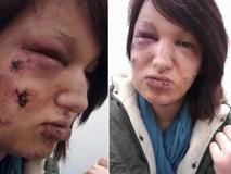 Khuôn mặt đáng thương của cô gái trẻ bị người yêu cắn 21 nhát vào mặt
