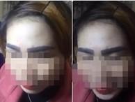 Bộ lông mày thảm họa khiến người phụ nữ 'mỗi khi soi gương chỉ muốn tự tử'