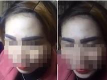 """Bộ lông mày thảm họa khiến người phụ nữ """"mỗi khi soi gương chỉ muốn tự tử"""""""