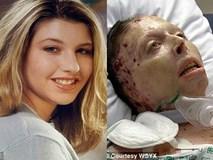 Bị bạn trai thiêu sống, người phụ nữ đau đớn khi bỏng hơn 80% cơ thể