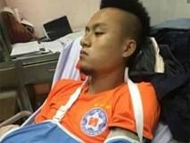 Võ Huy Toàn phải phẫu thuật 2 lần, nghỉ thi đấu 6 tháng