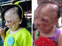 Cô bé người Việt mang khối u che hết nửa gương mặt bất ngờ được một người phụ nữ Mỹ cứu giúp