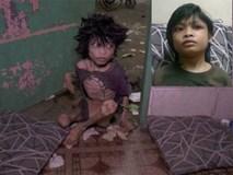 Bị mẹ đẻ nhốt 2 năm trời chỉ ăn phân và nước tiểu, cậu bé 9 tuổi thay đổi chóng mặt sau khi được giải cứu