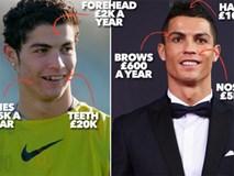 """Ronaldo, Beckham và những ngôi sao bóng đá nhờ cậy vào """"dao kéo"""""""