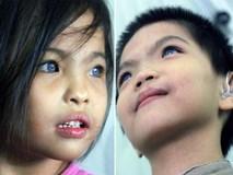 Hai em bé câm điếc có đôi mắt màu xanh bí ẩn ở Sài Gòn đã nghe được những thanh âm đầu tiên
