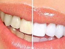 Tẩy trắng răng ai nên, ai không?