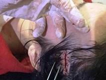 Tin tức mới nhất vụ cô giáo tổ chức 'bắt cóc', đánh người ở Hà Tĩnh