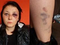 Kỷ niệm 1 năm hẹn hò, thanh niên uống gần 9 lít bia rồi đánh đập, kéo lê bạn gái trên đường
