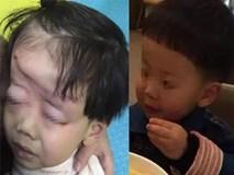 Mẹ mải xem điện thoại, con 4 tuổi bị xe cán biến dạng đầu