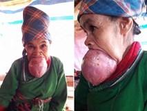Bà cụ mang cái lưỡi khổng lồ chưa từng thấy ở Việt Nam