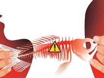Chẳng may bị hóc xương cá, hãy áp dụng ngay những cách đơn giản và hiệu quả sau