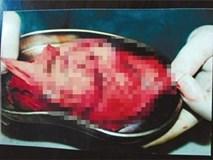 Sản phụ bị bác sĩ bỏ quên băng gạc trong người hơn 70 ngày, bệnh viện đền 100.000 đồng