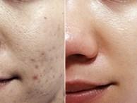 Tẩm bông gòn với nước chanh pha loãng thoa lên da – kết quả khiến bạn muốn làm theo ngay lập tức
