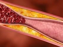 """""""Công thức vàng"""" làm sạch mạch máu, giảm mỡ máu: Bài thuốc nên có trong mọi gia đình"""