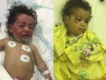 Hai em bé 1 tuổi sống sót thần kỳ trong cuộc tấn công đẫm máu