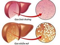 10 nguy cơ và dấu hiệu bệnh gan bạn nhất định phải biết