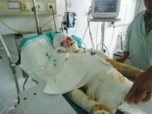 Nổ bình ắc quy xe, thanh niên 19 tuổi bỏng nặng nguy kịch