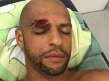 'Thùng rác vàng' Brazil dính chấn thương kinh dị