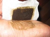Sự thật về miếng dán thải độc dán ở gan bàn chân có thể hút hết chất độc trong cơ thể