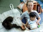 Phát hiện búi tóc khủng nặng 1kg ở trong dạ dày bé gái 11 tuổi-2
