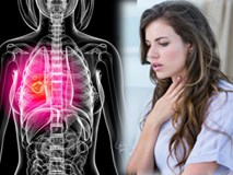 Triệu chứng này của bệnh ung thư phổi thường xuất hiện ở giai đoạn đầu nhưng rất khó nhận ra