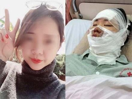 Cô gái trẻ bàng hoàng kể thời điểm nổ bóng bay bị bỏng cả khuôn mặt