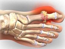 Lời khuyên bác sĩ: Chữa khỏi bệnh gout không phải thuốc, mà do bí quyết