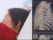 Bà mẹ U70 bị con trai ruột đánh gãy 11 chiếc xương sườn, thủng màng nhĩ tai trái
