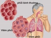 8 dấu hiệu của bệnh viêm phổi bạn không nên bỏ qua