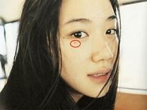 Nếu bạn có nốt ruồi xung quanh mắt thì nhất định phải hiểu rõ ý nghĩa của chúng, nhất là tình duyên