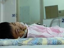 Thương tâm bé trai 5 tuổi bị điện giật khiến hoại tử nặng hai bàn tay