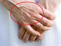 Nổi tĩnh mạch trên cơ thể là dấu hiệu bệnh gì? Đây chính là những gợi ý giúp bạn nhận biết