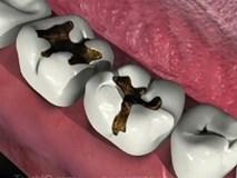 Chỉ vì một cái răng sâu mà tử vong, đừng chủ quan trong điều trị