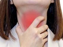 Bài thuốc chữa viêm amiđan từ củ hành